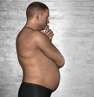 Bulging Belly